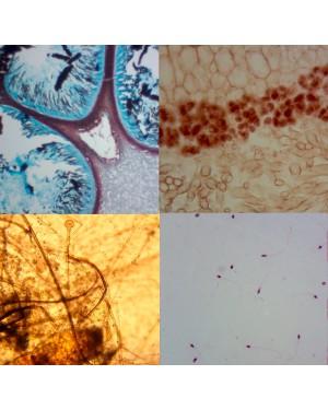 Bactéria Citologia e Fungos