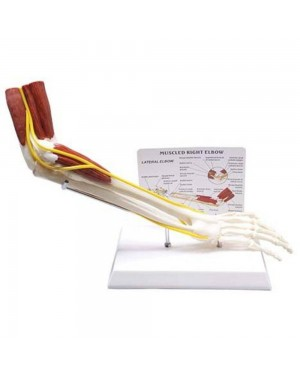 Braço com Ossos, Músculos, Ligamentos e Nervos