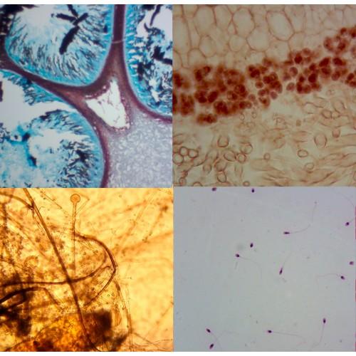 Lâminas Preparadas Bactéria, Citologia e Fungos 12 peças RBCF-12