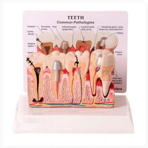 Patologia Dentária e Placa Explicativa TGD-0311-J