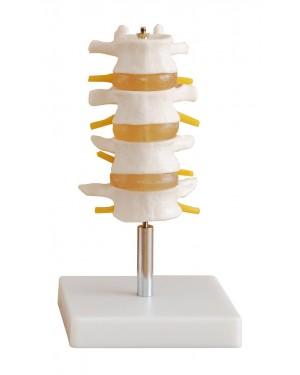 Vértebras Lombares com 3 discos COL 1118 Coleman