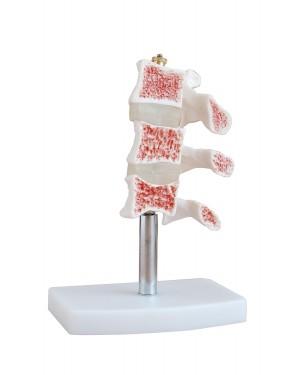 Modelo de Osteoporose COL 1134 Coleman