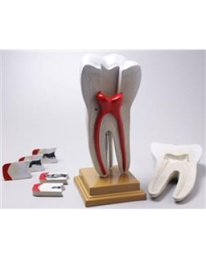 Dente Molar Ampliado 8 Partes c/ Evolução da Cárie TGD 0311-G