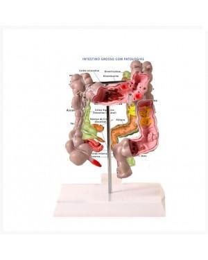 Intestino Grosso com Patologia TGD-0329-G