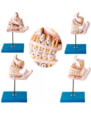 Desenvolvimento da Dentição com 4 Peças TZJ-0313-D
